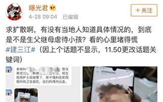 黑龙江4岁女童遭其父同居女友暴打成重伤