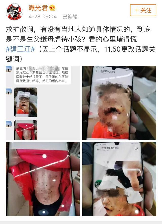 黑龍江4歲女童遭其父同居女友暴打成重傷