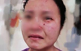 被非洲黑人男子毆打並被咬傷的女護士。(網絡圖)