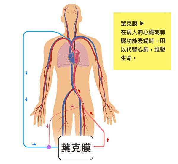 葉克膜通常是在疾病後期,病人心臟或肺臟功能衰竭、心臟停止跳動時,用以維繫生命。(Shutterstock/大紀元製圖)