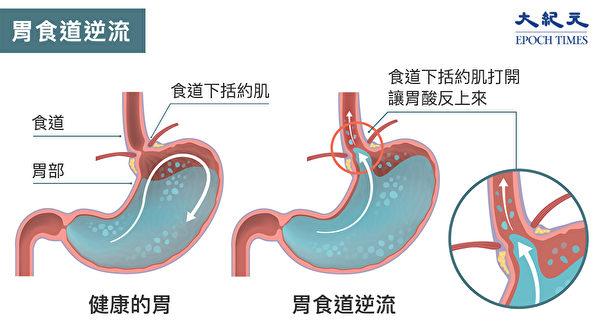 """""""胃食道逆流""""(GERD)指的是胃内涌出的胃酸灼伤食道,进而引起发炎反应的疾病。(Shutterstock/大纪元制图)"""