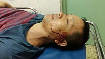 2016年9月,唐吉田律師被神秘車禍後,趙中元幫助送往醫院。(趙中元提供)
