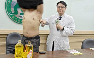 自打沙拉油成D罩杯 彰基施「3D」手術成功變回型男
