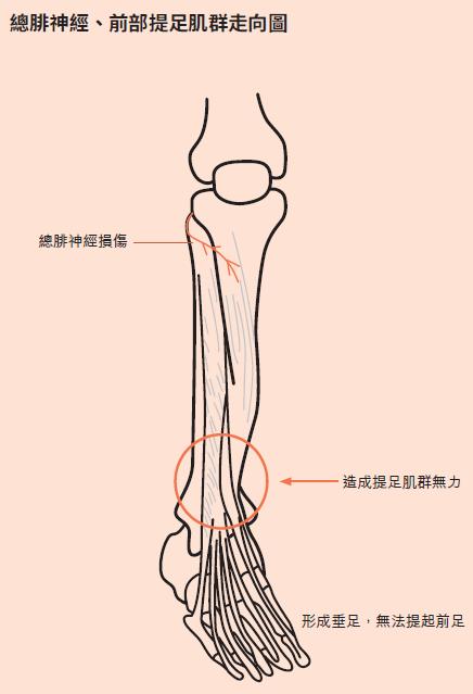 當總腓神經產生麻痹,一穿夾腳拖,拖鞋就會掉下來。(時報出版提供)