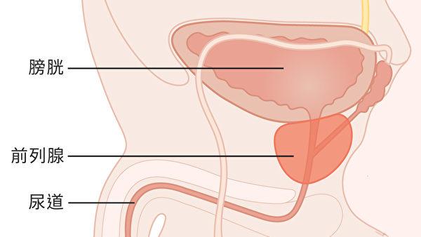 前列腺癌腫瘤細胞則更傾向於發生在前列腺的邊緣。(Wikimedia Commons)