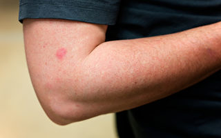 中共肺炎(又称武汉肺炎、COVID-19)出现了许多新症状,如皮肤疹或水泡。示意图。(Shutterstock)