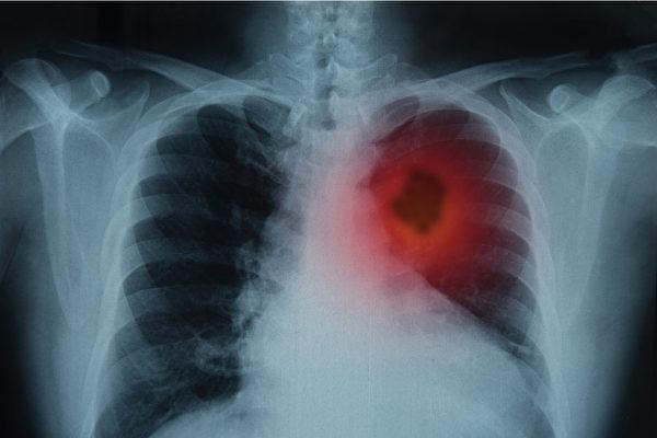 近年来,空污与肺癌的关联越来越凸显。(Shutterstock)