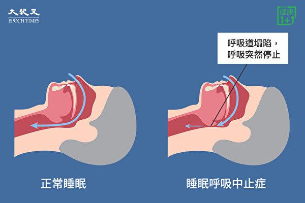 睡眠呼吸中止症發生的原因,是我們的上呼吸道因為某一些軟組織塌陷、鬆軟。(Shutterstock/大紀元製圖)