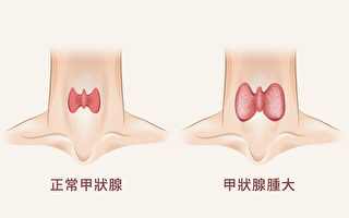 【胡乃文开讲】按按耳朵 改善甲状腺功能 中医防治甲状腺肿大