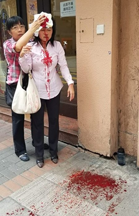 2019年9月24日下午約4點左右,香港法輪功學員廖女士在長沙灣警署附近遭遇襲擊,頭破血流。(明慧網)