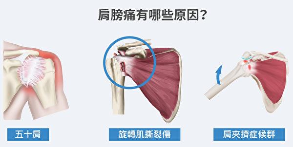 肩膀痛的原因,其实有很多,不一定就是五十肩。(Shutterstock/大纪元制图)