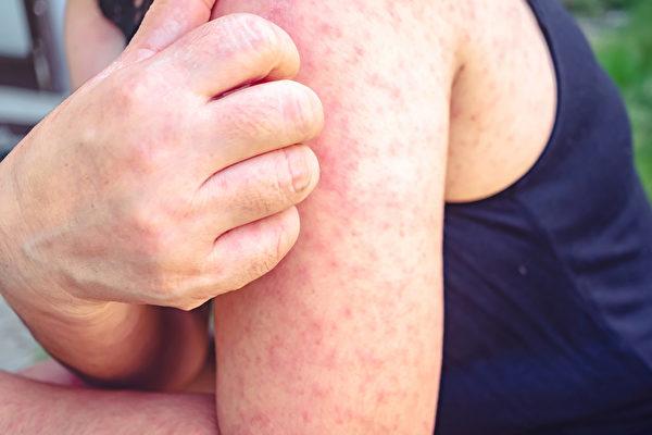 川崎氏症又稱川崎病、川崎氏病,是兒童中比較普遍的血管炎症,症狀包括長紅疹、長時間發燒等。(Shutterstock)