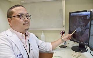 第三期膀胱癌 彰基使用免疫疗法治疗见效