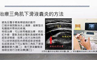 是五十肩疼痛嗎  小心三角肌下滑液囊炎