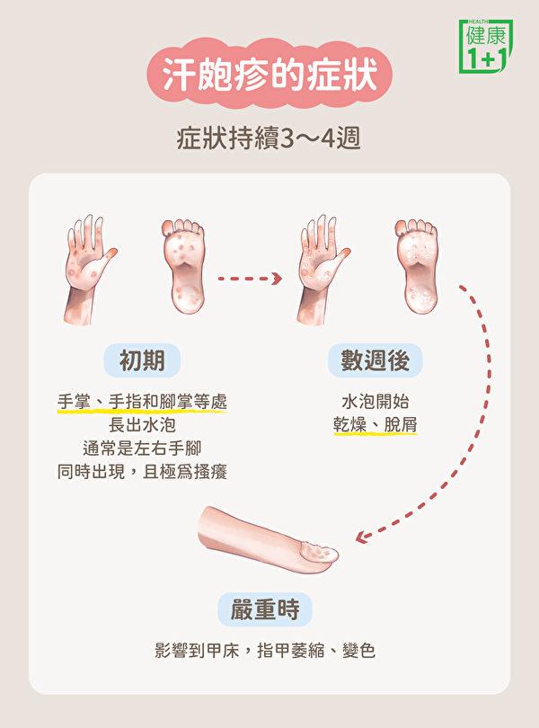 汗疱疹的症状主要表现为水泡和骚痒,大部分水泡都出现在手掌、手指以及脚掌。(健康1+1/大纪元)