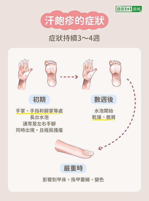 汗皰疹的症狀。(健康1+1/大紀元)