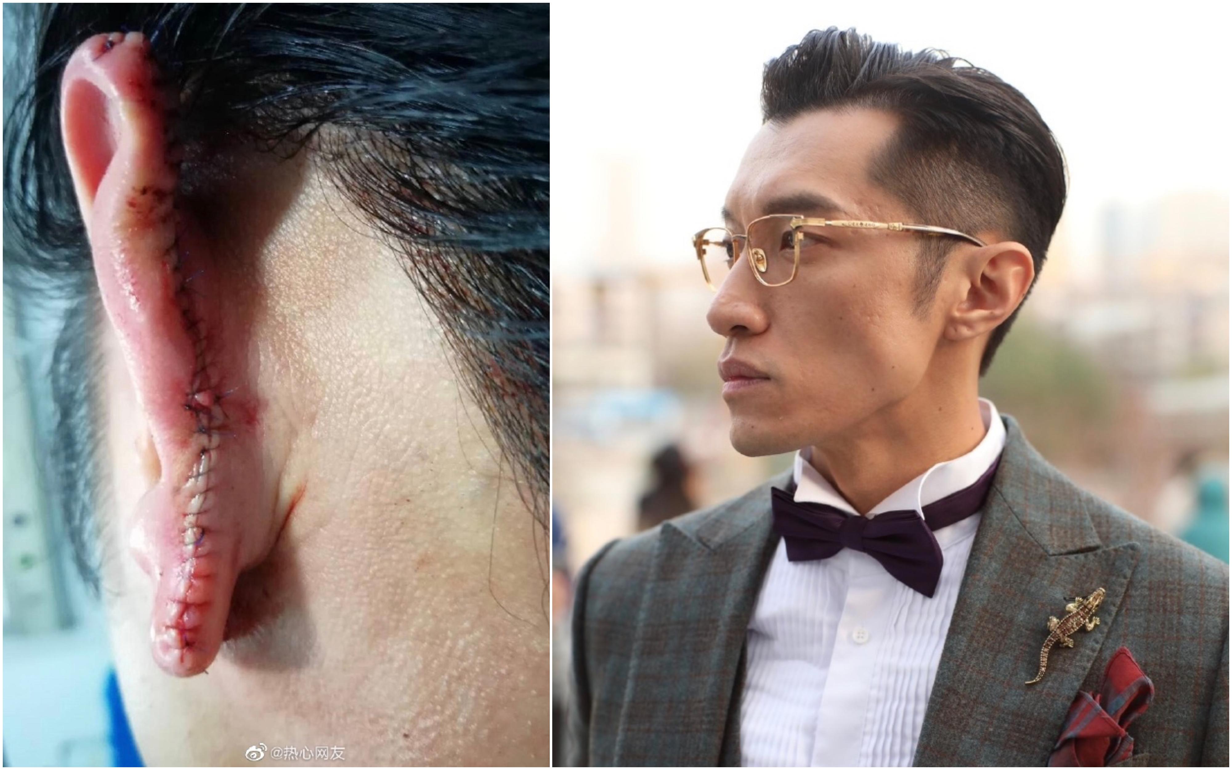 時尚界大V李先生在微博爆料,自己因在上海阻止一起性侵案,被嫌疑人咬掉三分之一的耳朵。(微博圖片)