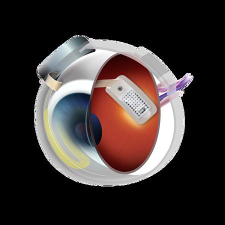 植入式電子眼。