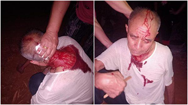 7月18日晚,拆遷隊再次進村,一位年邁村民頭部被打傷流血。(受訪人提供)