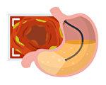 照胃鏡會疼痛嗎?胃鏡檢查有何注意事項?(Shutterstock)