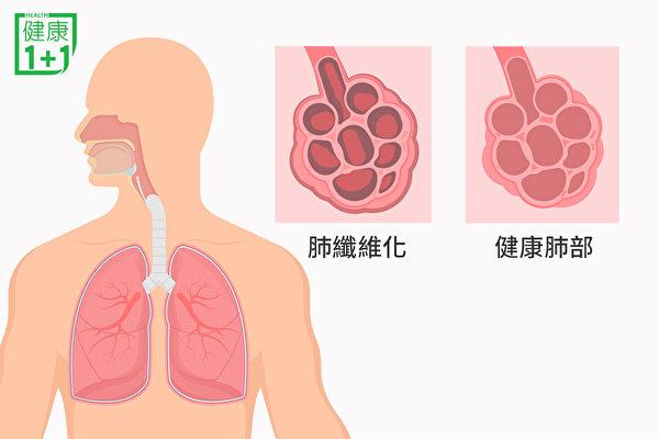 肺部結疤痕的現象,就是肺纖維化。(健康1+1/大紀元)