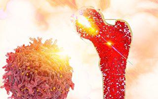 納米硅粒子治療三種骨骼疾病