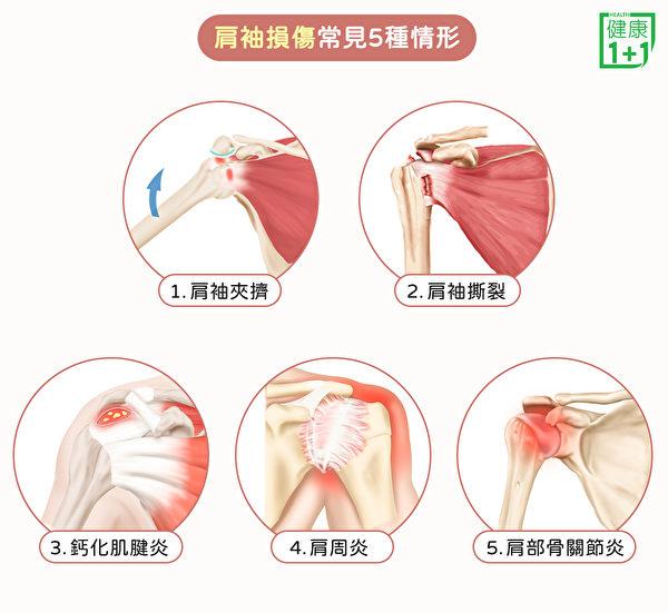 肩袖损伤常见五种疾病:肩袖夹挤(肩关节夹挤症候群)、肩袖撕裂、钙化肌腱炎肩周炎和肩部骨关节炎。(健康1+1/大纪元)