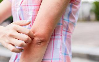 夏日因皮膚搔癢而求助醫生的患者裡,有三類情況最常見:汗疹、蚊蟲叮咬及黴菌感染。(Shutterstock)