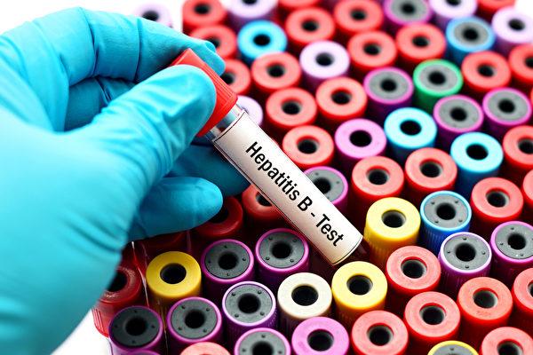 慢性B型肝炎者的肝細胞已經出現發炎情況,血液檢查會發現肝功能指數過高。(Shutterstock)