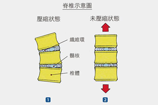 非常用力时,椎间盘有可能受到压迫。而伸展可以让脊椎放松。(方言文化提供)