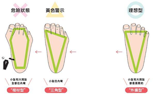 腳趾歪斜,身體也會跟著歪。自我檢視腳趾狀態。(三采文化提供)