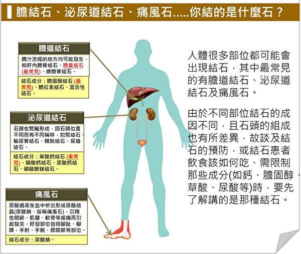 人体很多部位都可能出现结石,但导致疼痛或造成健康困扰的主要有胆结石、泌尿道结石和痛风石。(Stella营养师提供)