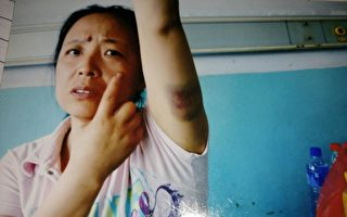 辽宁省本溪市的史云香讨要政府背书工程的欠款,遭醉酒警察暴力殴打。(受访人提供)