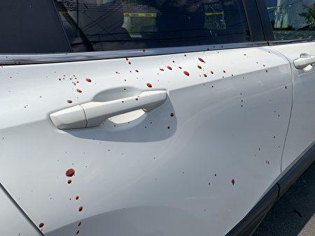 攻击者身上的血溅到了车身上。