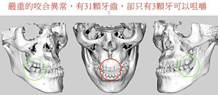 张庭维全口31颗牙齿,仅剩3颗具咬合功能。
