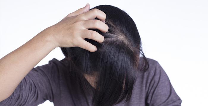 夏天頭皮出油流汗 掉髮增2成 如何保養?
