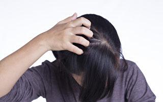 夏天头皮容易流汗、出油,怎样保护头皮、选择洗发精?(Shutterstock)
