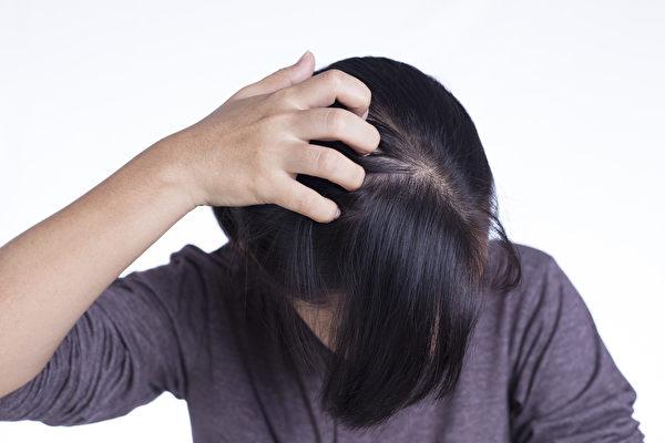 夏天頭皮容易流汗、出油,怎樣保護頭皮、選擇洗髮精?(Shutterstock)