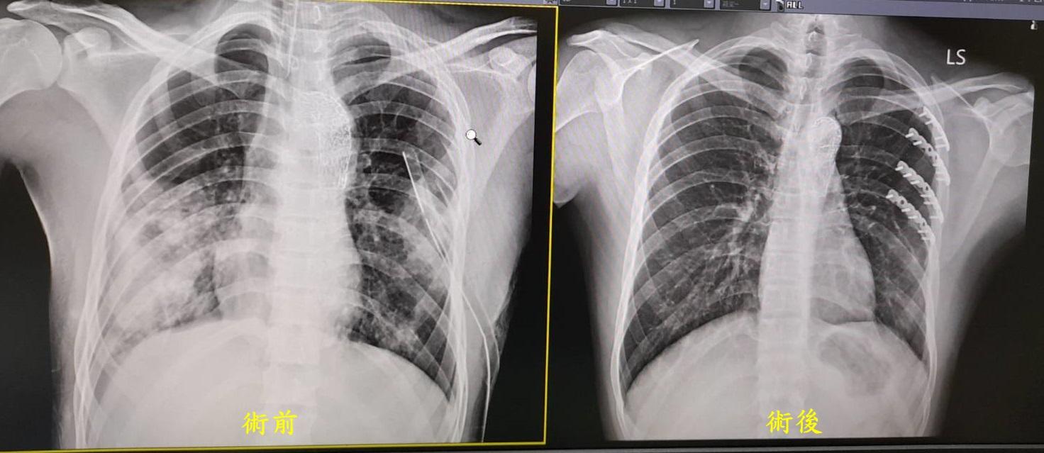 肋骨 骨折 症状