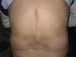 青岩康復後的後背照,脊柱處痊癒的傷痕有15釐米長。(明慧網)