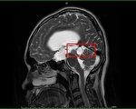 青少年頭痛併眼動異常 儘早就醫勿拖延