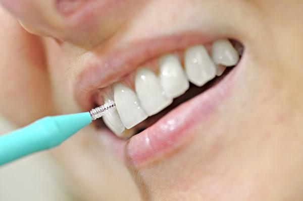 牙缝刷,interdental brush