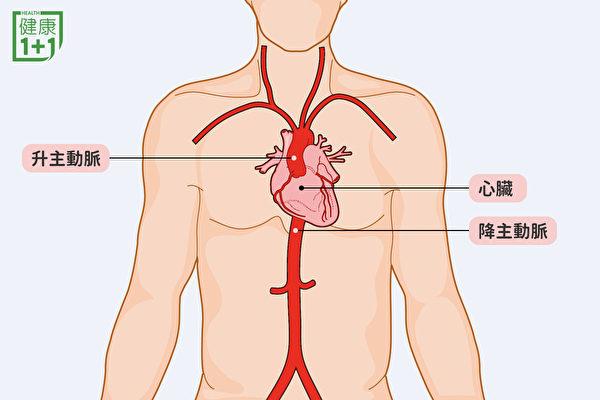 发生在升主动脉的主动脉剥离非常严重,可能引起心肌梗塞。(健康1+1/大纪元)