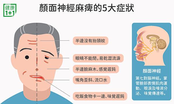 顏面神經失調的症狀,包括半邊臉感覺遲鈍、麻木、嘴角歪斜等。(健康1+1/大紀元)