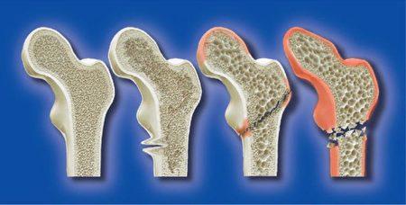 身体缺钙导致骨质疏松的四大主因