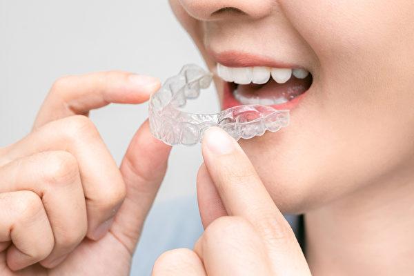 """""""隐形牙套""""是以高分子材料制成,整副牙套是透明的,不影响美观。(Shutterstock)"""