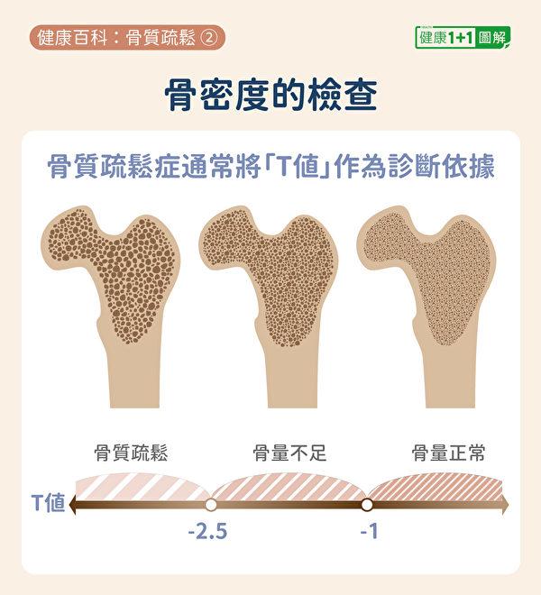 """骨质疏松症检查通常将""""T值""""作为诊断依据。(健康1+1/大纪元)"""