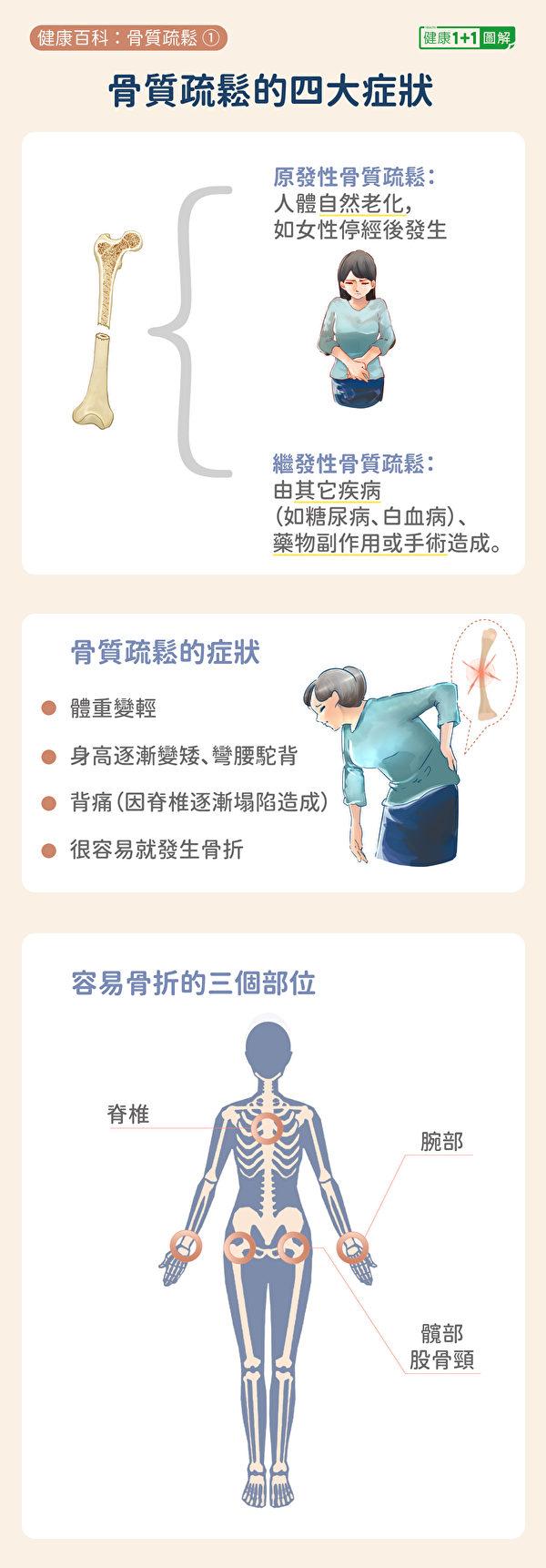 骨质疏松症的症状及容易骨折的部位。(健康1+1/大纪元)