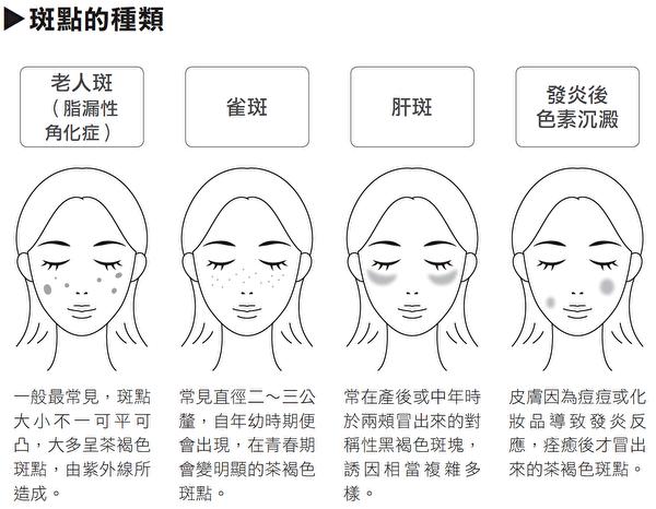 斑點常見分成四種類型: 老人斑(曬斑)、雀斑、肝斑、發炎後色素沉澱這四種。(方舟文化提供)