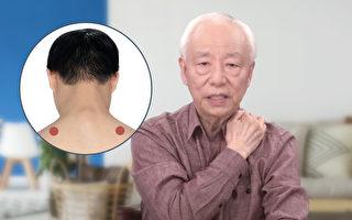 按摩3穴位肩颈变柔软 中医教你挥别肩颈痛